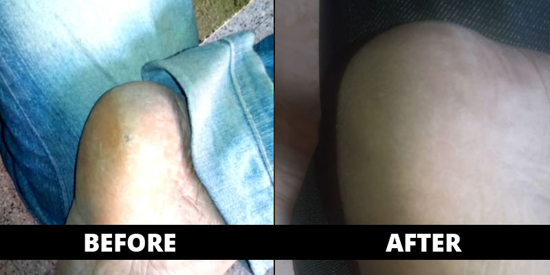 Corn cured (before-after) with homoeopathy treatment