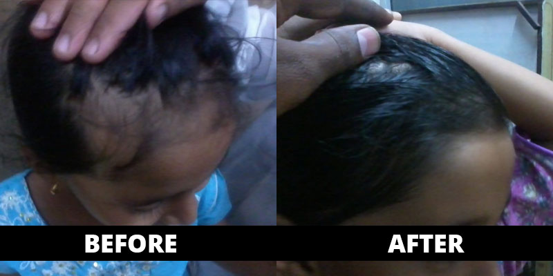 Hair Fall cured (before-after) with homoeopathy treatment