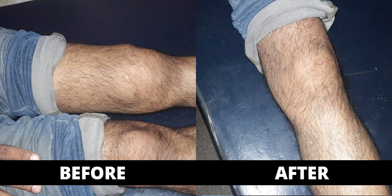 Knee / Joint Swelling cured (before-after) with homoeopathy treatment