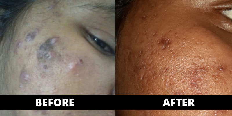 Pimples cured (before-after) with homoeopathy treatment